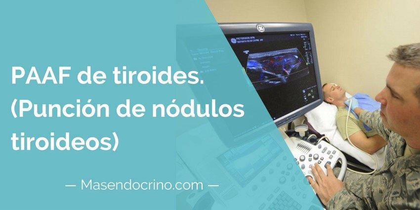 Paaf De Tiroides Punción De Tiroides